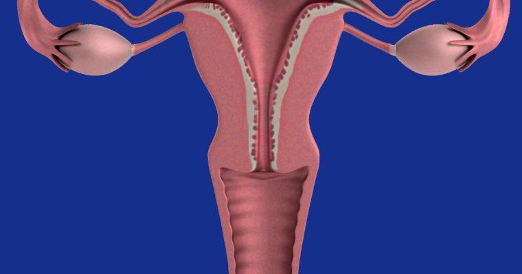 Mięśniaki macicy – Recepta na szybkie ich się pozbycie
